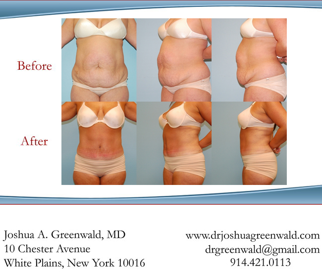 Before and After Tummy Tuck Photos New York Westchester County